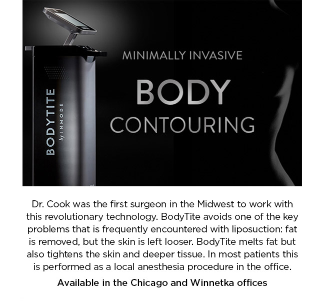 Dr. Cook was the first surgeon in the Midwest to work with this revolutionary technology. BodyTite avoids one of the key problems that is frequently encountered with liposuction: fat is removed, but the skin is left looser. BodyTite melts fat but also tightens the skin and deeper tissue. In most patients this is performed as a local anesthesia procedure in the office. Available in the Chicago and Winnetka offices
