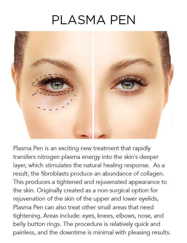 Plasma Pen is an exciting new treatment that rapidly transfers nitrogen plasma energy into the skin's deeper layer, which stimulates the natural healing response.  As a result, the fibroblasts produce an abundance of collagen. This produces a tightened and rejuvenated appearance to the skin. Originally created as a non-surgical option for rejuvenation of the skin of the upper and lower eyelids, Plasma Pen can also treat other small areas that need tightening. Areas include: eyes, knees, elbows, nose, and belly button rings. The procedure is relatively quick and painless, and the downtime is minimal with pleasing results.
