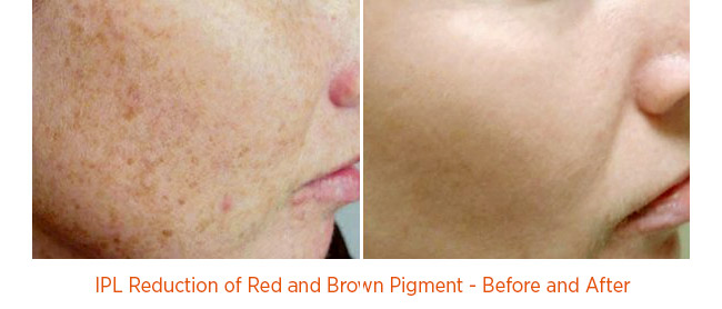 IPL Reduction of Red and Brown Pigment - Before and After