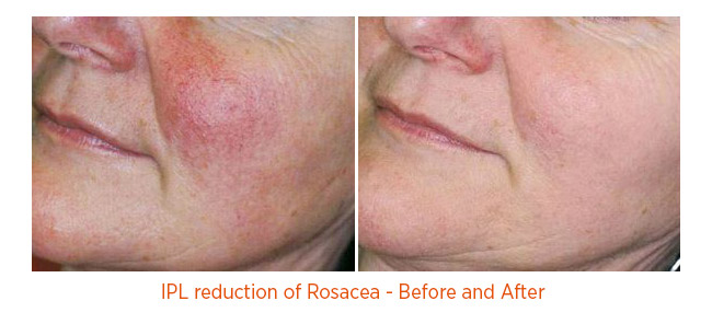 IPL reduction of Rosacea - Before and After