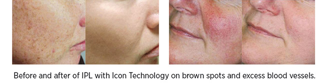 Before and after of IPL with Icon Technology on brown spots and excess blood vessels.