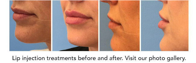Lip injections before and after. Visit our photo gallery.