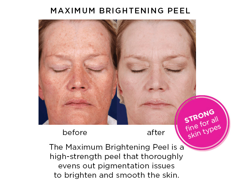 The Maximum Brightening Peel is a  high-strength peel that thoroughly evens out pigmentation issues to brighten and smooth the skin.