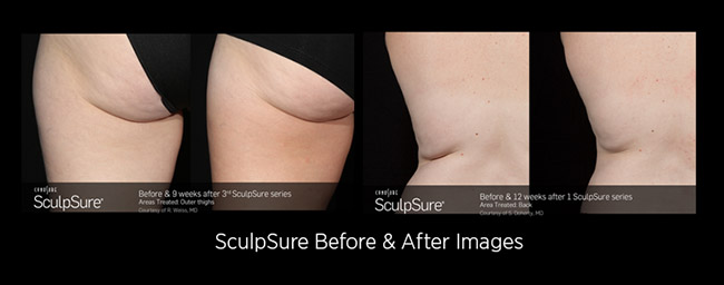 SculpSure before and after images