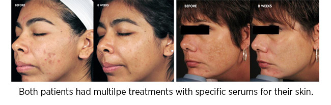Both patients had multilpe treatments with specific serums for their skin.