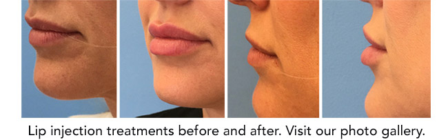Lip injection treatment before and after. Visit our photo gallery.
